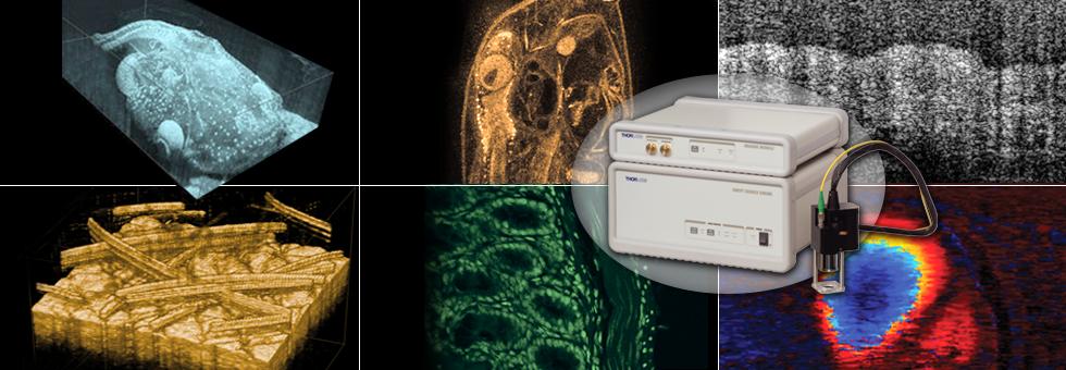 Swept-Source OCT Assesses Kidney Viability