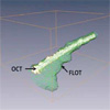 3D OCT and FLOT registration