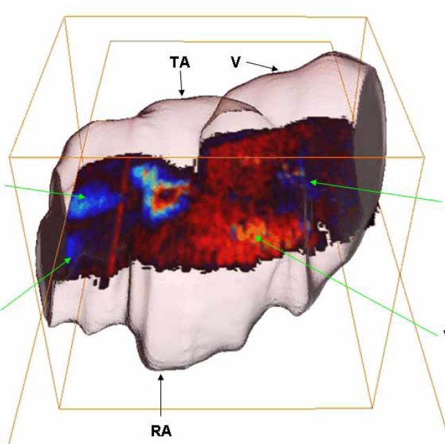 3D Doppler of embryo heart