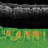 Tissue Birefringence