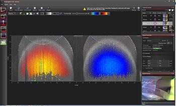 OCT Doppler Imaging Screen Shot