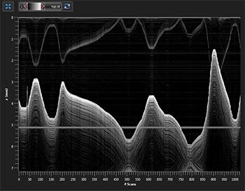 OCT Software 1D Mode M-scan