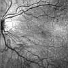 OCT retinal image