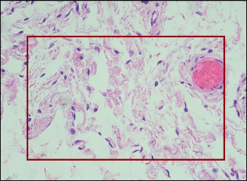 Sample Image of Human Ileum